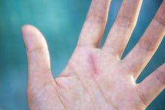 Schneiden Sie Wunde auf Mädchenhand Stockbilder