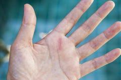 Schneiden Sie Wunde auf Mädchenhand Stockfoto
