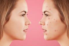 Schoss seitlich von zwei weiblichen ` s Gesichtern: ein mit gesunder reiner Haut und anderes mit vielen Pickeln, hat Akne, constr stockfoto