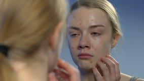 Schreeuwende jonge dame die met afschuw gezichtsacne bekijken in spiegel, onhandige leeftijd stock videobeelden