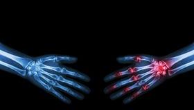 Schudt de röntgenstraal normale persoon hand met de persoon van de Artritishand Royalty-vrije Stock Foto