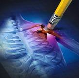 Schulter-Schmerz-Entlastung stock abbildung