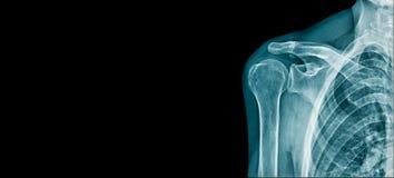 Schulterfahnen-Röntgenstrahlbild stockfotos