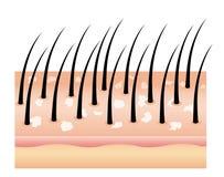 Schuppen auf Haar, Haarkopfhaut Pilz auf der Kopfhaut Ursache des Haarausfalls stock abbildung