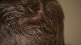 Schuppenhaar auf Männern, Nahaufnahme, Mann verkratzt seinen Kopf stock video