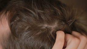 Schuppenhaar auf Männern, Nahaufnahme, Mann verkratzt seinen Kopf stock footage