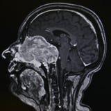 Schwanomma - tumor, MRI Fotografia de Stock Royalty Free