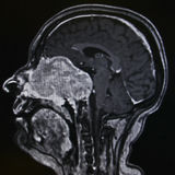 Schwanomma - tumor, MRI Royalty Free Stock Photography
