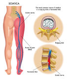 Sciatica. Medical illustration of symptoms of sciatica
