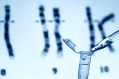 Scientific (or Medical) experiment. Drip tube in front a genic graph stock image