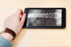 Scientist analyzes vertebral column on tablet pc Stock Image