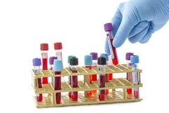 Scientist hand tacking of one sample from a rack of bood test tubes view from above. Scientist hand tacking one sample from a rack of bood test tubes view from Royalty Free Stock Photos