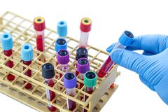Scientist hand tacking of one sample from a rack of bood test tubes view from above. Scientist hand tacking one sample from a rack of bood test tubes view from Royalty Free Stock Photo