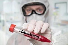 Scientist is holding test-tube on CORONAVIRUS COVID-19