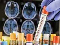Scientist holds blood sample to investigate remedy against Alzheimer`s disease. Conceptual image stock photos