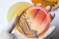 Scientist& x27; s-hand i latexhandsken som rymmer bakterierna som växer älsklings- Royaltyfria Foton