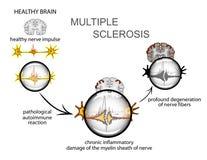 Sclérose en plaques neurologie Photographie stock