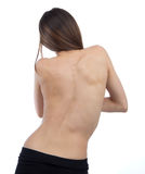 Scoliose patiente d'épine de docteur Photos libres de droits