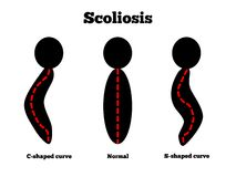 Scoliosis. Different types of curvatures caused by scoliosis Stock Image
