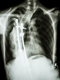 Scoliosis stock images