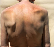 Scoliosis. Rachiocampsis. Kyphosis. Curvature of the spine. Scoliosis. Rachiocampsis. Kyphosis Curvature of the spine stock photo