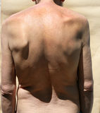 Scoliosis. Rachiocampsis. Kyphosis. Curvature of the spine. Scoliosis. Rachiocampsis. Kyphosis Curvature of the spine royalty free stock image