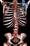 Scoliosis. Osteoporosis. CT-scan reconstruction Royalty Free Stock Photo