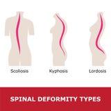 Scoliosis, svankryggighet och kyphosis Arkivbild