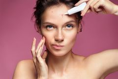 Scowling girl pointing at her acne and appling treatment cream. Stock Photos