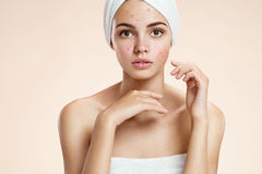 Scowling girl in shock of her acne with a towel on her head. Woman skin care concept Royalty Free Stock Photo