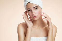 Scowling girl show her acne with a towel on her head. Woman skin care concept Royalty Free Stock Images