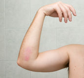 Scraped elbow #3 - 20 days after accident. Royalty Free Stock Images
