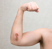 Scraped elbow #3 - 9 days after accident. Royalty Free Stock Image