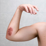 Scraped elbow - 5 days after accident. Stock Photos