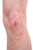 Scraped knee. A close-up of a scraped knee royalty free stock photos