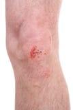 Scraped knee Royalty Free Stock Photos