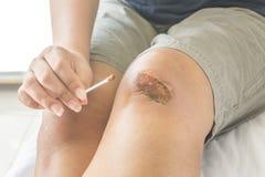 Scraped knee Stock Photo