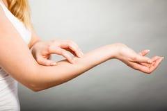 Scratch femminile il suo braccio che prude con l'eruzione di allergia Fotografia Stock Libera da Diritti