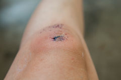 Scratch on the knee. Scratch on the knee caused by a fall Stock Image