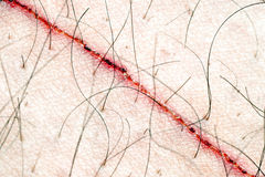 Scratch on the skin. Close-up of a scratch on mans body Stock Photo