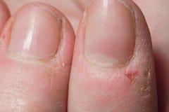Scratched dañó los fingeres femeninos macros foto de archivo