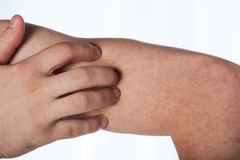 Scratching hand with allergy rash Stock Images