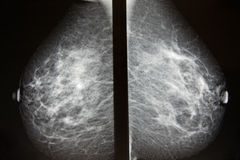 Free Screening For Breast Cancer Royalty Free Stock Image - 14088686
