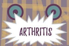 Scrittura dell'artrite di rappresentazione della nota Foto di affari che montra malattia che causa infiammazione e rigidezza dolo illustrazione di stock