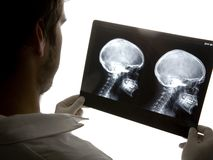 Scull x-ray Stock Photo