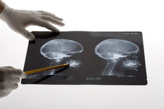 Scull X-ray Stock Image