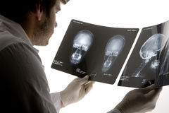 Scull x-ray Stock Photography