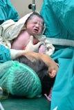 Seção Cesarean Fotografia de Stock Royalty Free