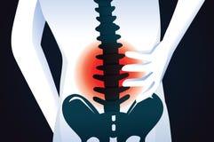 Señal roja en el área de la espina dorsal libre illustration