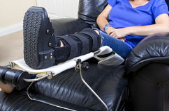 Señora con la pierna fracturada Foto de archivo libre de regalías